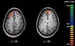 Variantes genéticas implicadas en el desarrollo de la esquizofrenia
